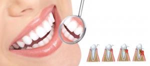 Qué son las enfermedades periodontales o Periodoncia