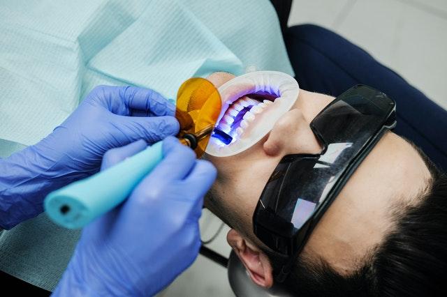 Blanqueamiento dental hasta 9 veces más blanco en clínica dental acismile